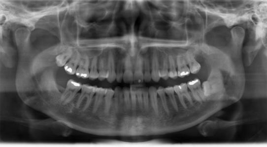 infektion i tandbenet