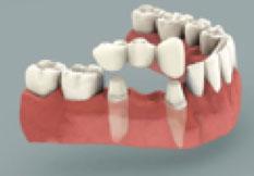 Brobehandling tand